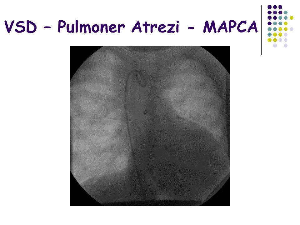 VSD – Pulmoner Atrezi - MAPCA