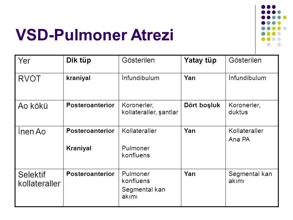 VSD-Pulmoner Atrezi Yer RVOT Ao kökü İnen Ao Selektif kollateraller