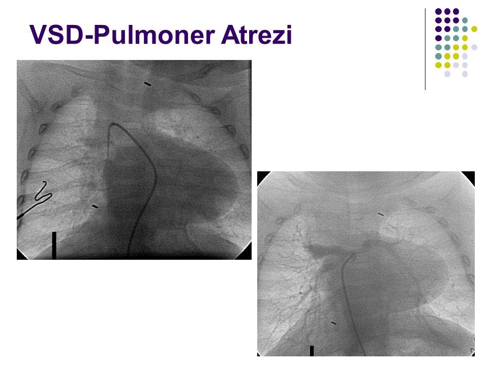 VSD-Pulmoner Atrezi