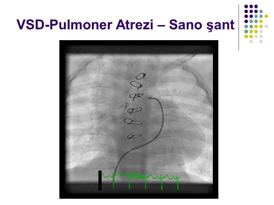 VSD-Pulmoner Atrezi – Sano şant