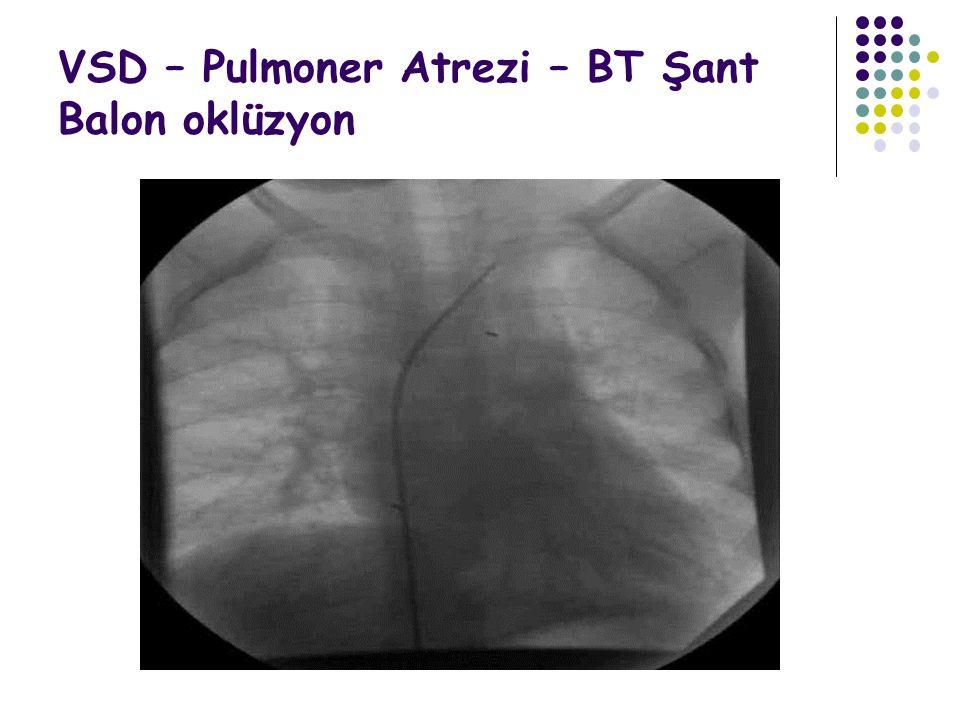 VSD – Pulmoner Atrezi – BT Şant Balon oklüzyon