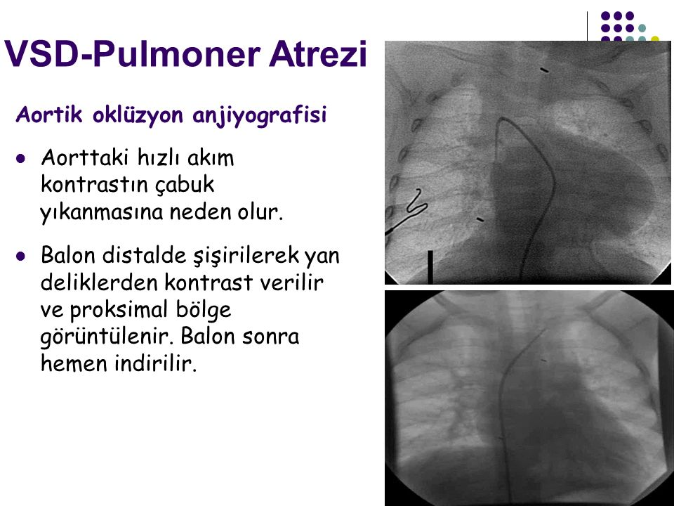 VSD-Pulmoner Atrezi Aortik oklüzyon anjiyografisi