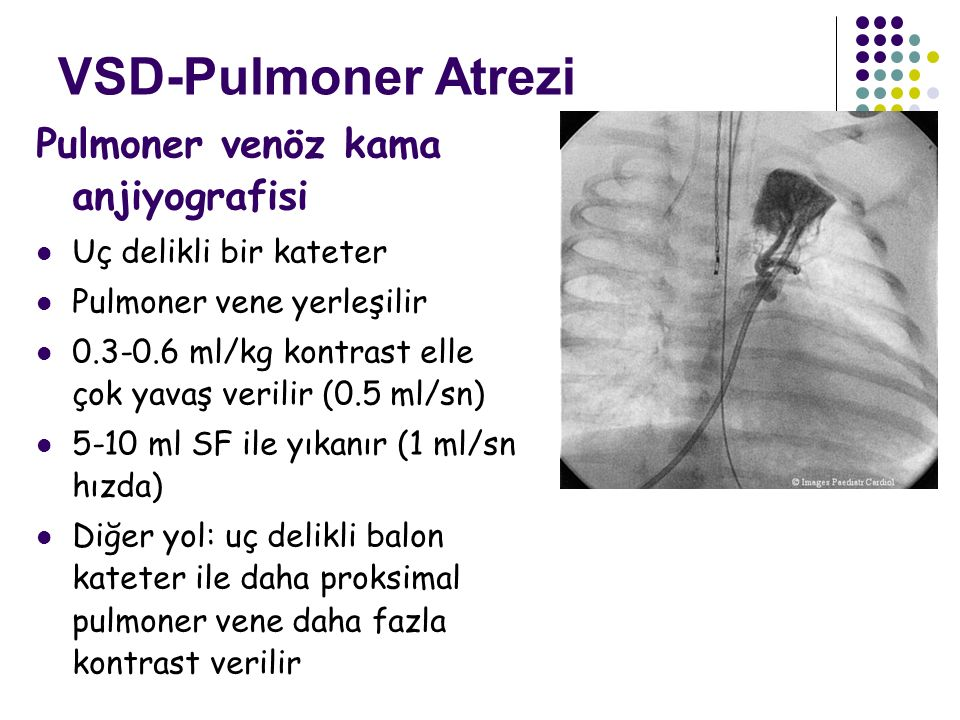 VSD-Pulmoner Atrezi Pulmoner venöz kama anjiyografisi
