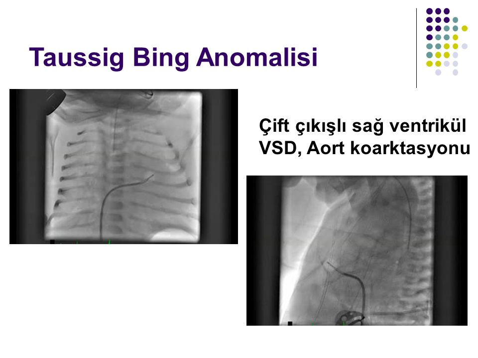 Taussig Bing Anomalisi