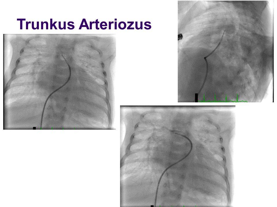 Trunkus Arteriozus