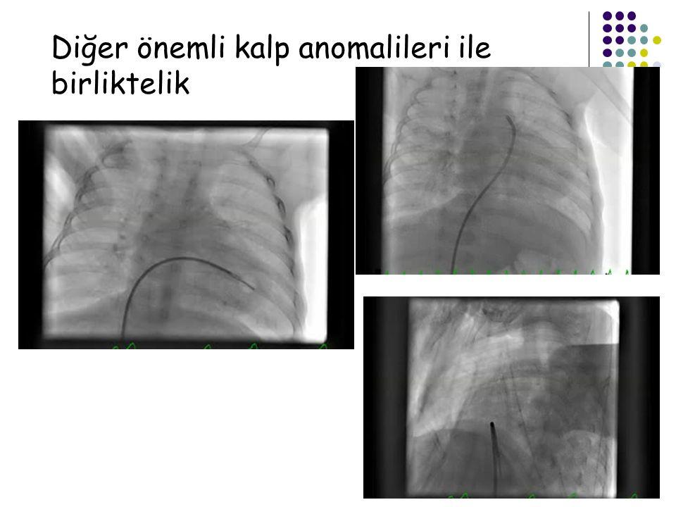 Diğer önemli kalp anomalileri ile birliktelik