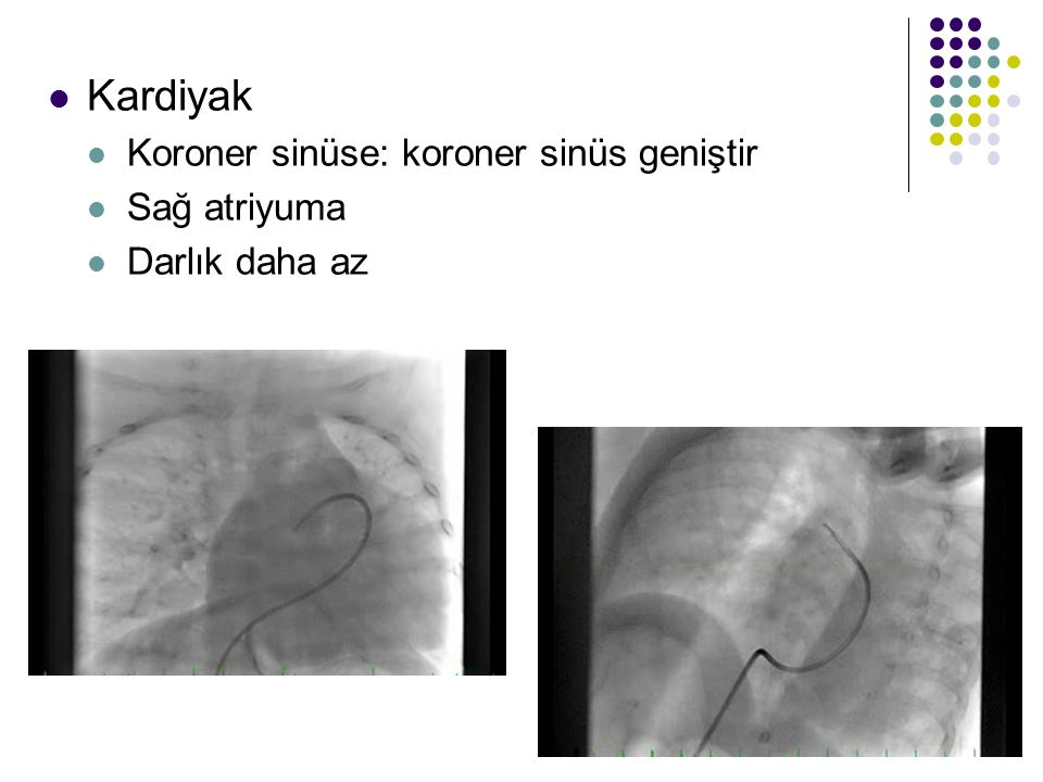 Kardiyak Koroner sinüse: koroner sinüs geniştir Sağ atriyuma