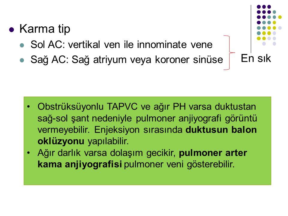 Karma tip En sık Sol AC: vertikal ven ile innominate vene