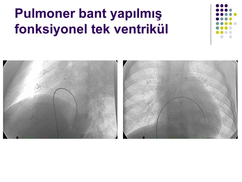 Pulmoner bant yapılmış fonksiyonel tek ventrikül