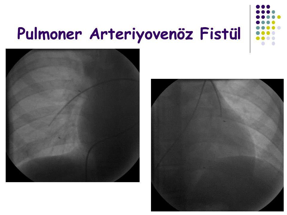 Pulmoner Arteriyovenöz Fistül
