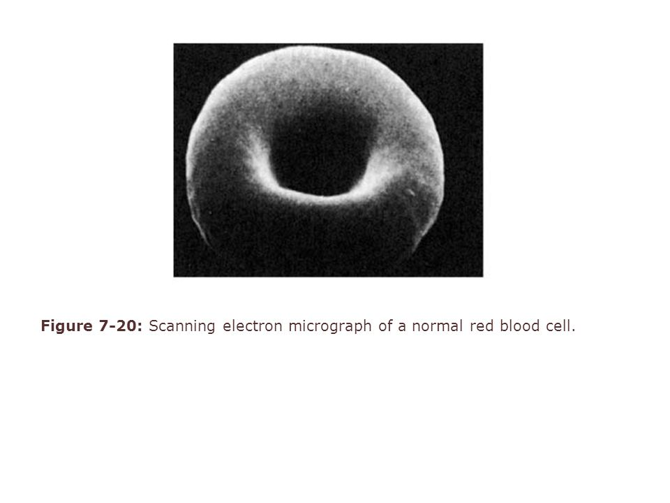 Figure 7-20: Scanning electron micrograph of a normal red blood cell.