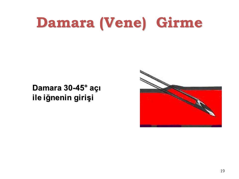 Damara (Vene) Girme Damara 30-45° açı ile iğnenin girişi