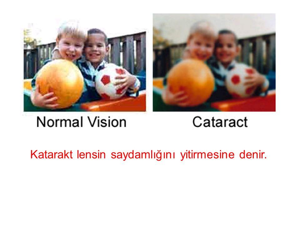 Katarakt lensin saydamlığını yitirmesine denir.