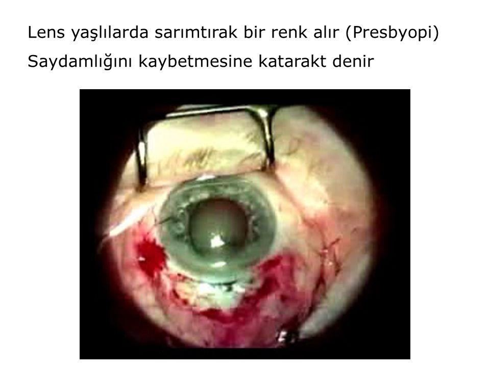 Lens yaşlılarda sarımtırak bir renk alır (Presbyopi)