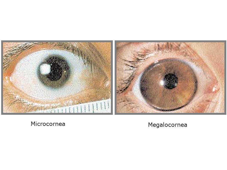 Microcornea Megalocornea