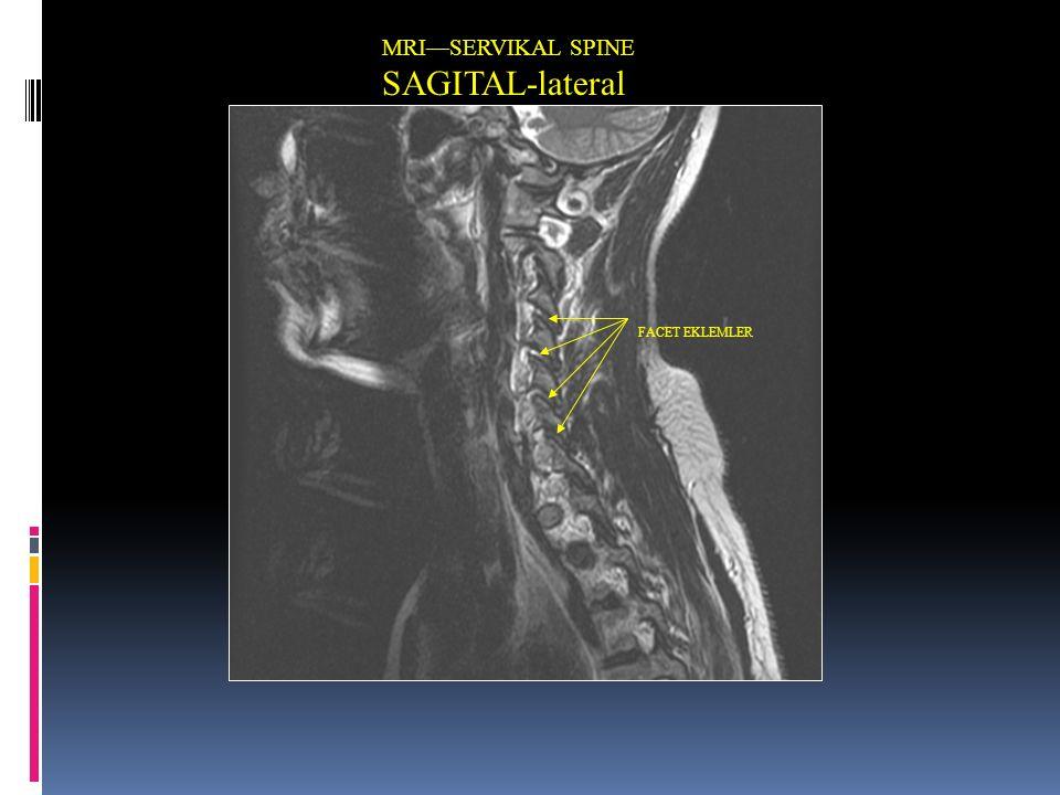 MRI—SERVIKAL SPINE SAGITAL-lateral FACET EKLEMLER