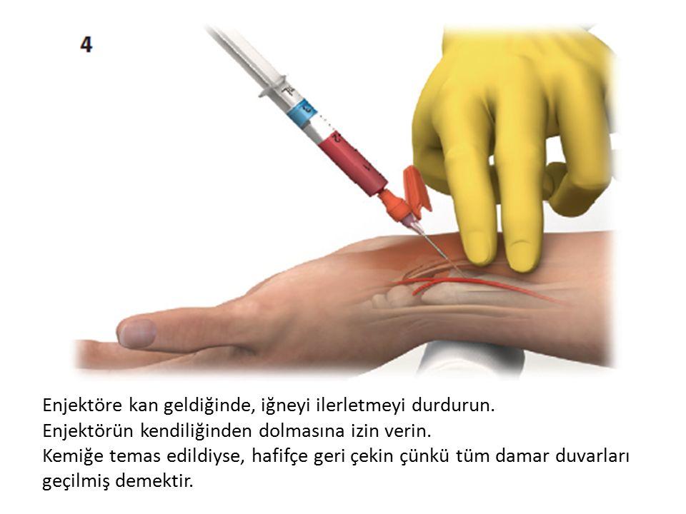 Enj-------- Enjektöre kan geldiğinde, iğneyi ilerletmeyi durdurun.