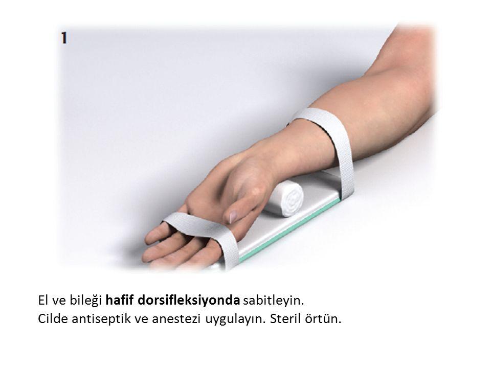 El ve bileği hafif dorsifleksiyonda sabitleyin.