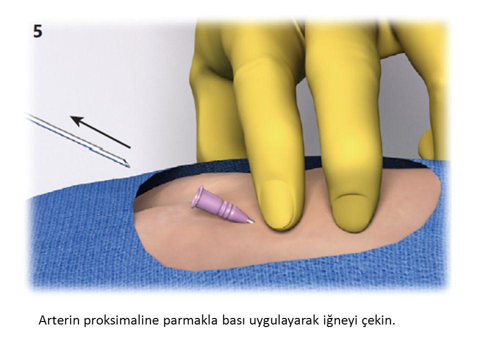 Arterin proksimaline parmakla bası uygulayarak iğneyi çekin.