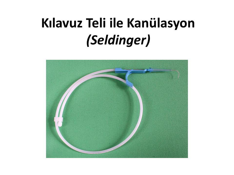 Kılavuz Teli ile Kanülasyon (Seldinger)