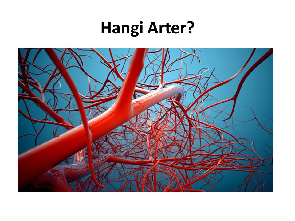 Hangi Arter