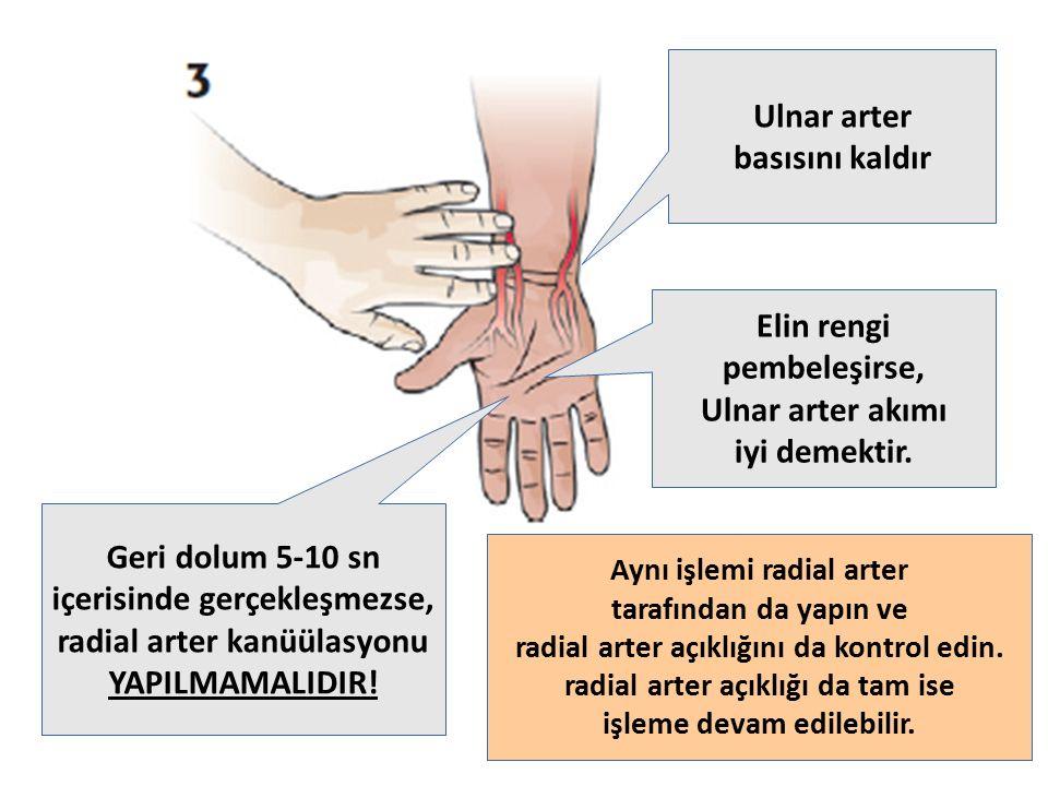 içerisinde gerçekleşmezse, radial arter kanüülasyonu YAPILMAMALIDIR!