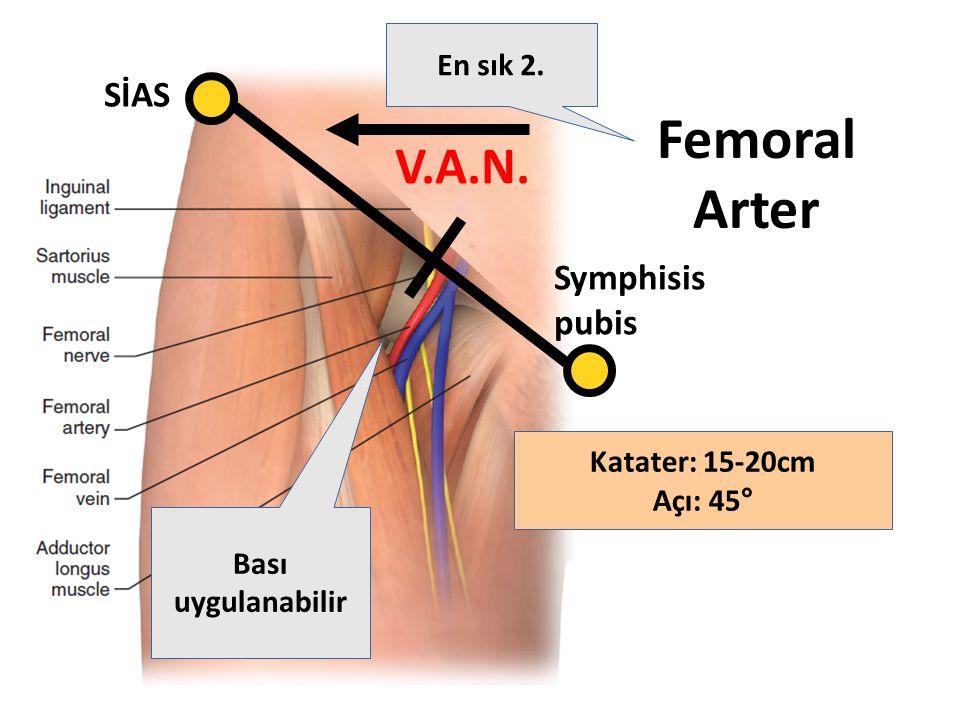 Femoral Arter V.A.N. SİAS Symphisis pubis En sık 2. Katater: 15-20cm