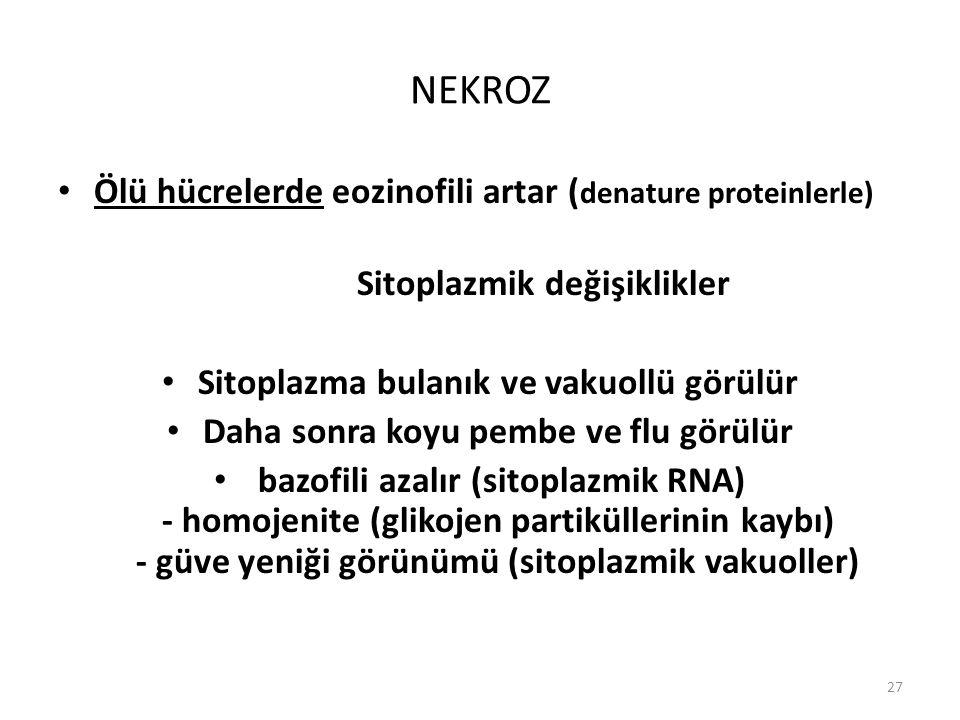 NEKROZ Ölü hücrelerde eozinofili artar (denature proteinlerle)