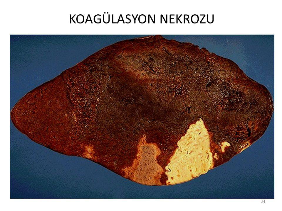 KOAGÜLASYON NEKROZU