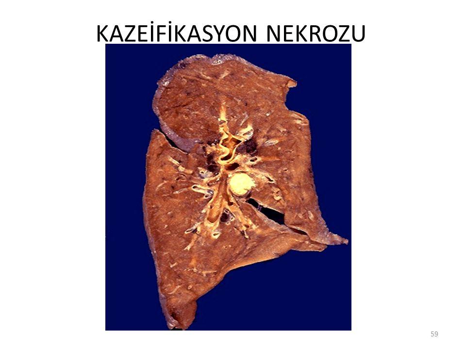 KAZEİFİKASYON NEKROZU