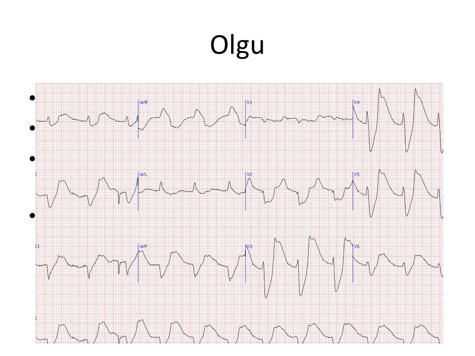 Olgu 62 yaş erkek NHL 5 gün önce KT Halsizlik, bulantı, kusma EKG