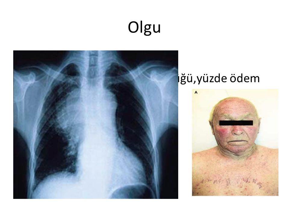 Olgu 48 yaş erkek akciğer kanseri