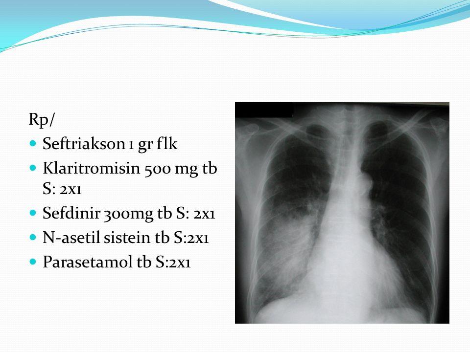 Rp/ Seftriakson 1 gr flk Klaritromisin 500 mg tb S: 2x1. Sefdinir 300mg tb S: 2x1. N-asetil sistein tb S:2x1.