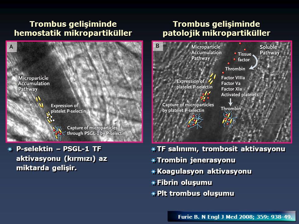 Trombus gelişiminde hemostatik mikropartiküller
