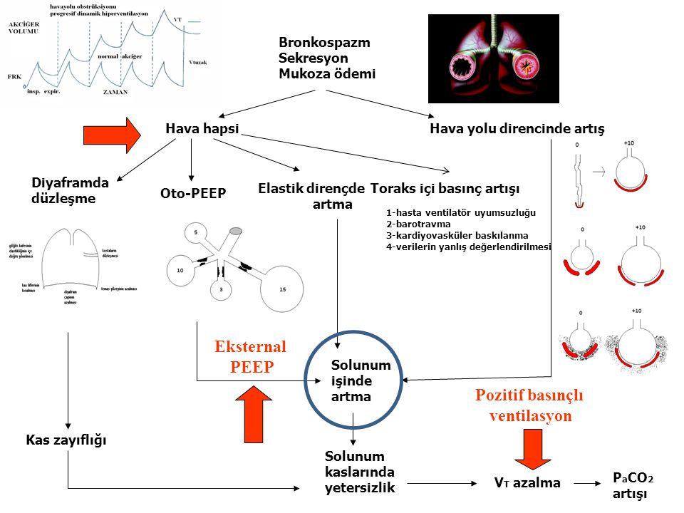 Eksternal PEEP Pozitif basınçlı ventilasyon