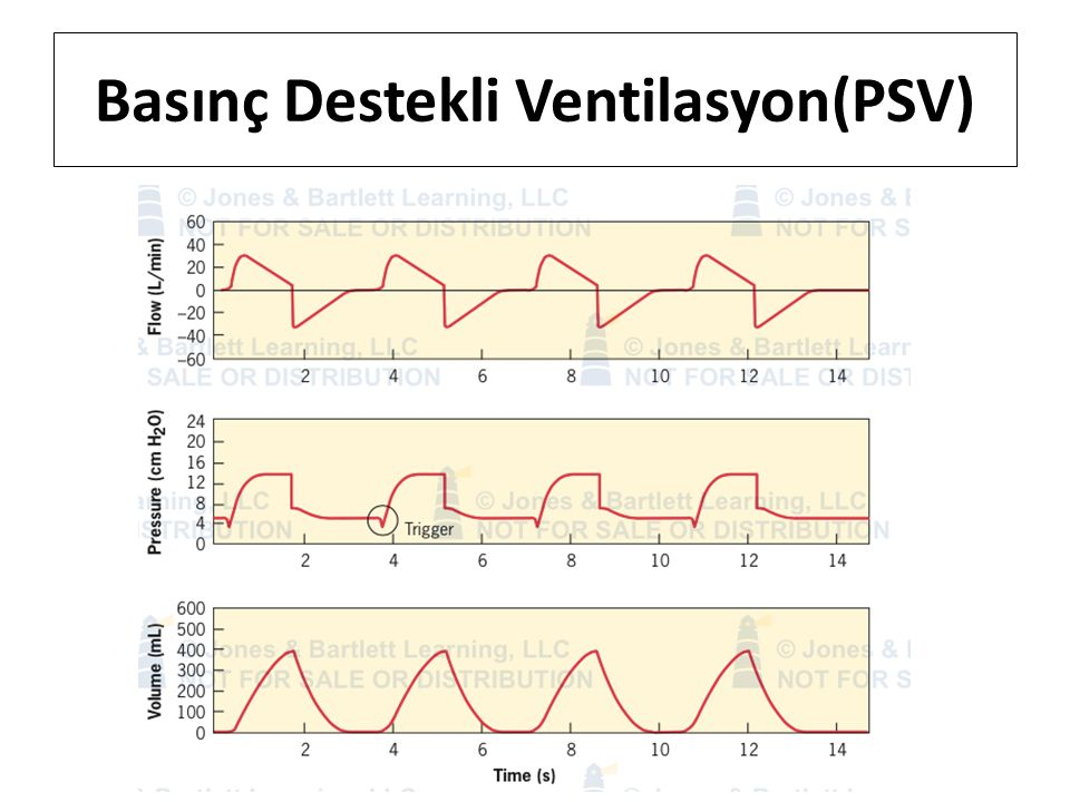 Basınç Destekli Ventilasyon(PSV)