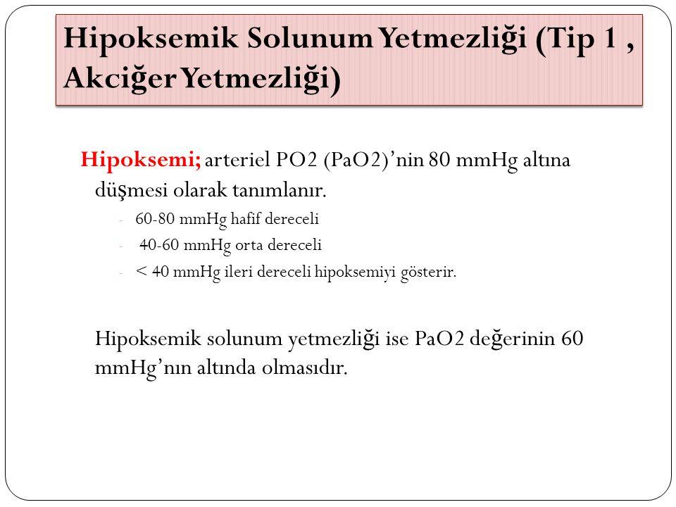 Hipoksemik Solunum Yetmezliği (Tip 1 , Akciğer Yetmezliği)