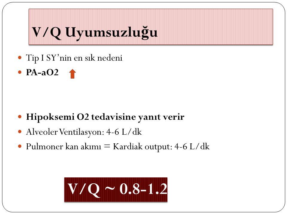 V/Q ~ 0.8-1.2 V/Q Uyumsuzluğu Tip I SY'nin en sık nedeni PA-aO2