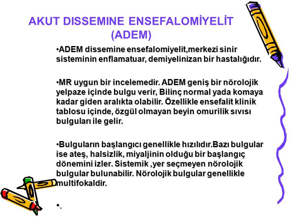 AKUT DISSEMINE ENSEFALOMİYELİT (ADEM)