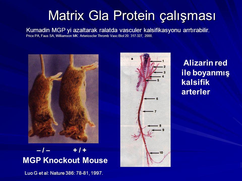 Matrix Gla Protein çalışması