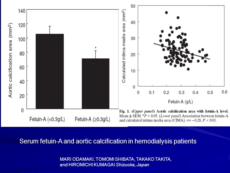 Serum fetuin-A and aortic calcification in hemodialysis patients