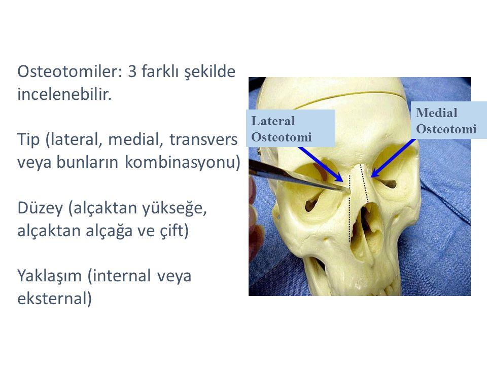 Osteotomiler: 3 farklı şekilde incelenebilir.