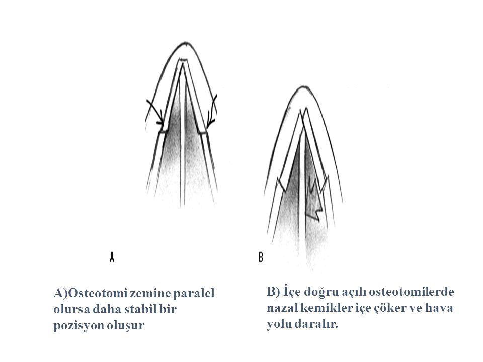 A)Osteotomi zemine paralel olursa daha stabil bir pozisyon oluşur