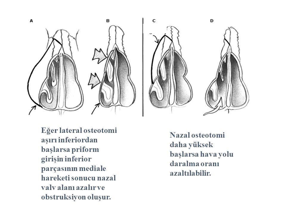 Eğer lateral osteotomi aşırı inferiordan başlarsa priform girişin inferior parçasının mediale hareketi sonucu nazal valv alanı azalır ve obstruksiyon oluşur.