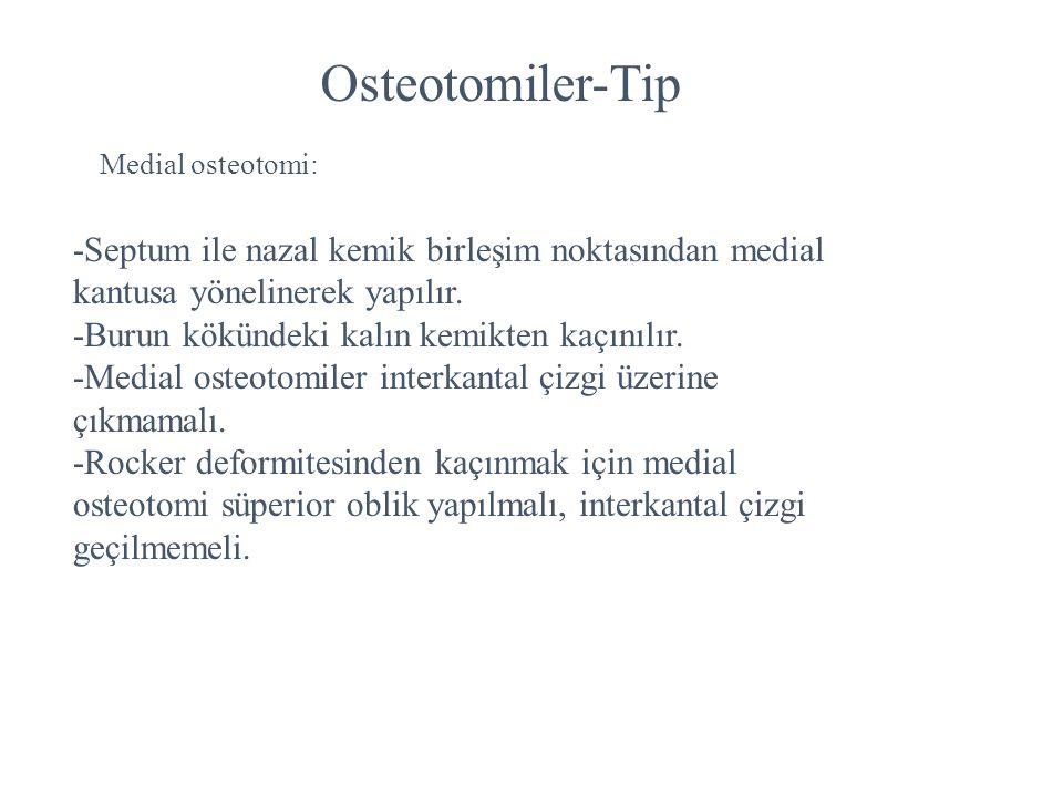 Osteotomiler-Tip Medial osteotomi: -Septum ile nazal kemik birleşim noktasından medial kantusa yönelinerek yapılır.
