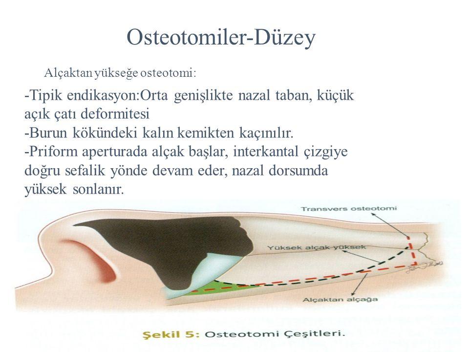 Osteotomiler-Düzey Alçaktan yükseğe osteotomi: -Tipik endikasyon:Orta genişlikte nazal taban, küçük açık çatı deformitesi.