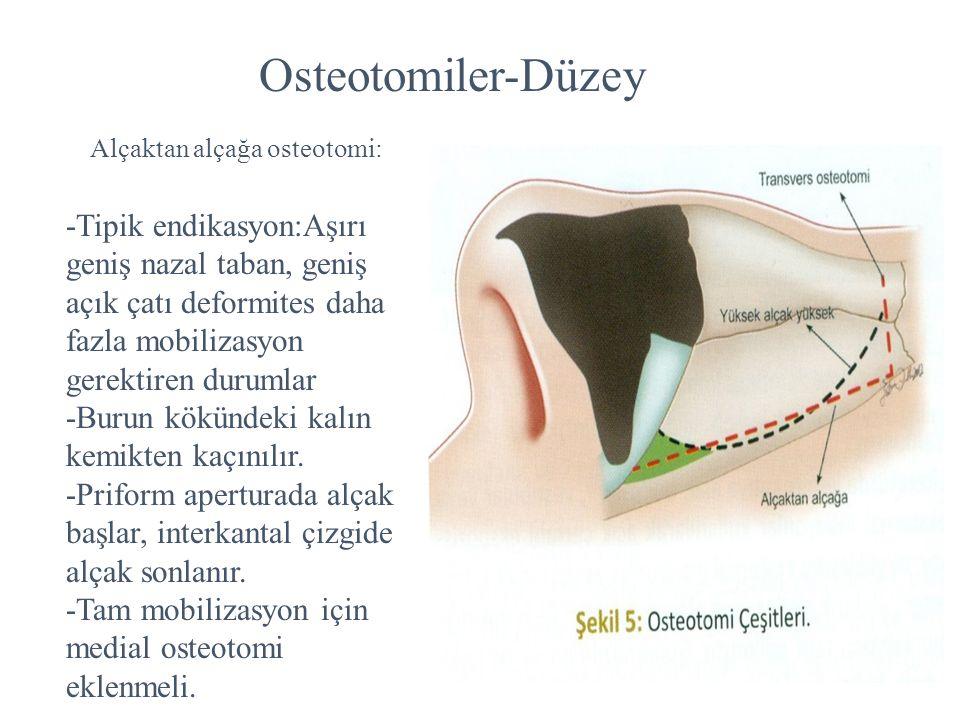 Osteotomiler-Düzey Alçaktan alçağa osteotomi: