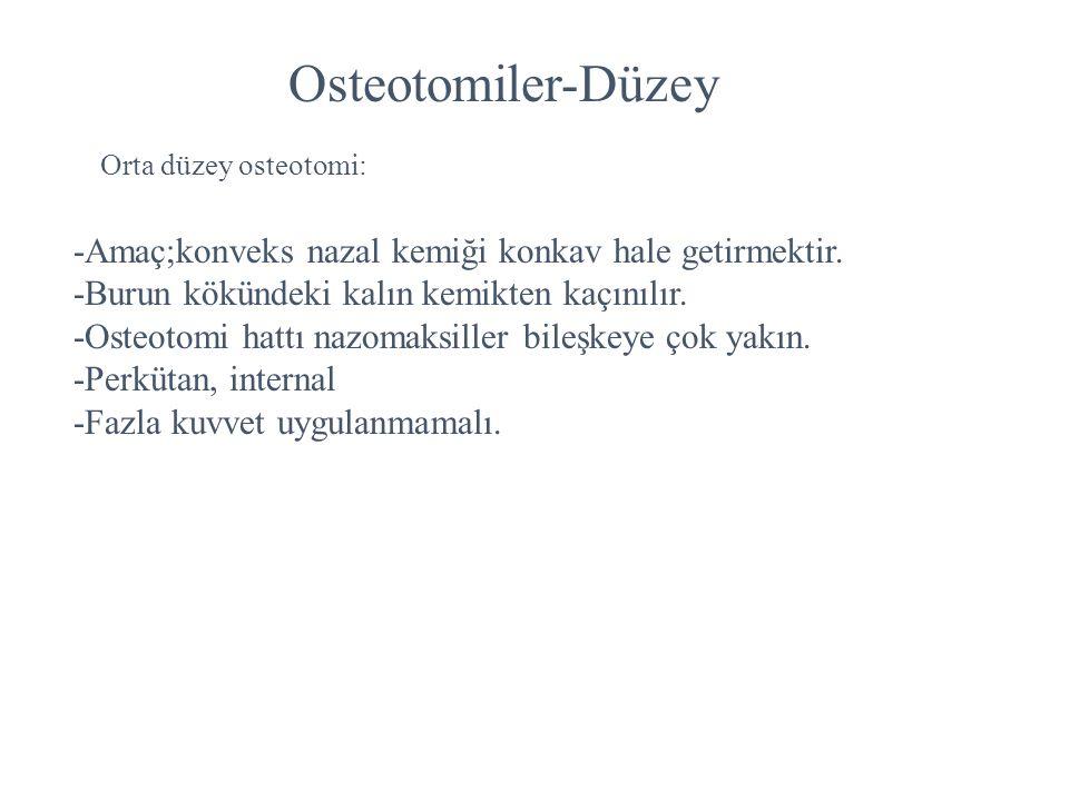 Osteotomiler-Düzey -Amaç;konveks nazal kemiği konkav hale getirmektir.