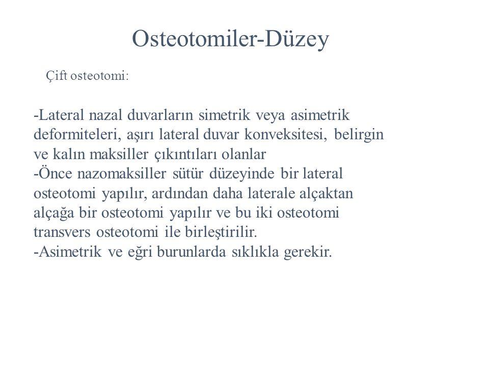 Osteotomiler-Düzey Çift osteotomi: