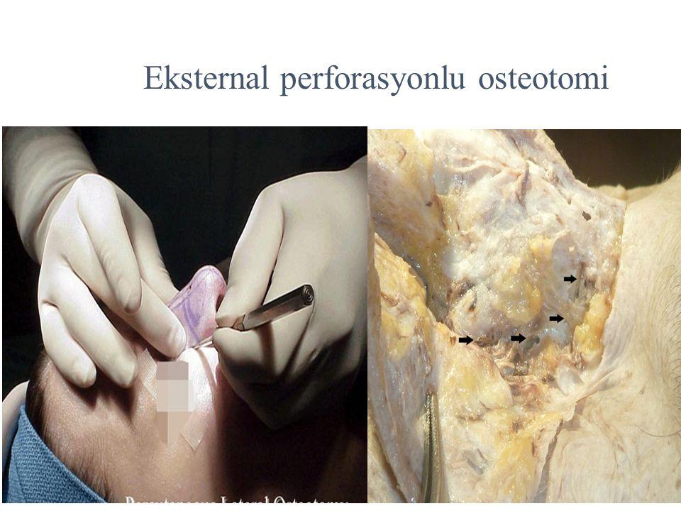 Eksternal perforasyonlu osteotomi